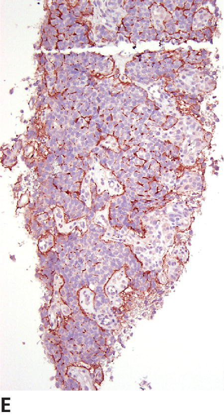 Micrograph of grade III oligodendroglioma of canine displaying GFAP immunoreactivity being confined largely to astrocytes outlining the microvascular proliferation.
