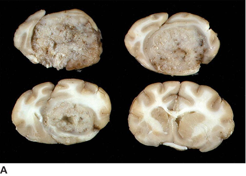 Photo displaying sequential sections illustrating the large, well-demarcated, granular tumor mass with marked left shift.