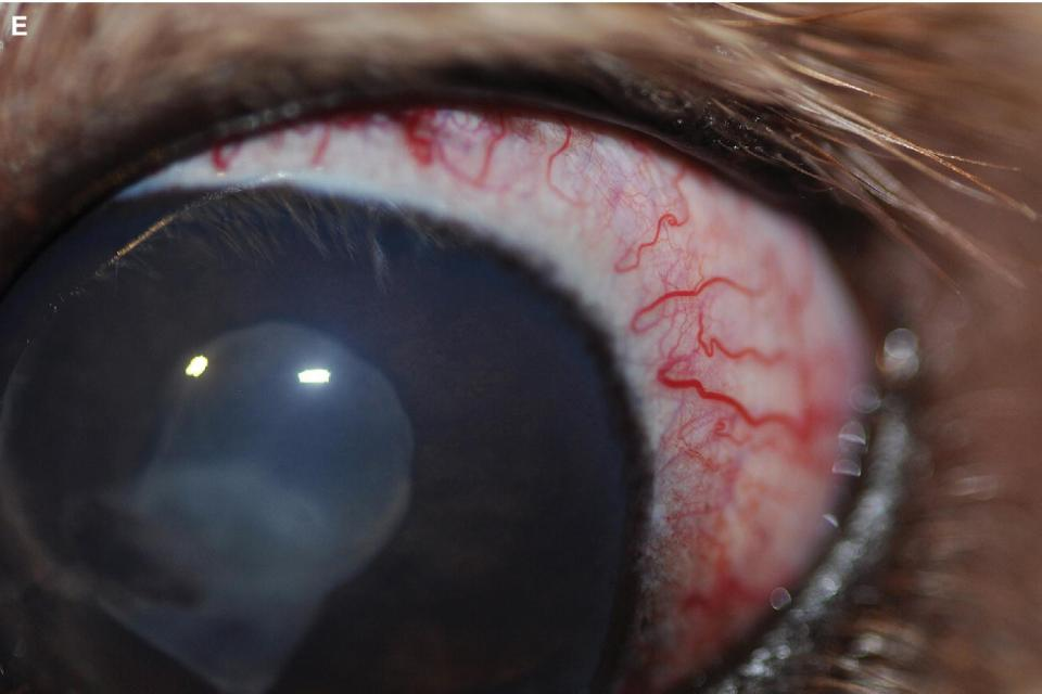 Photo displaying episcleral injection in a Golden Retriever with pigmentary uveitis and secondary glaucoma, with diffuse corneal edema and the fibrin clot in the pupil.
