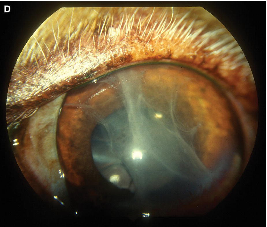 Photo of a dog's eye displaying clotted fibrin in the anterior chamber following phacoemulsification of a hypermature cataract 5 days previously.