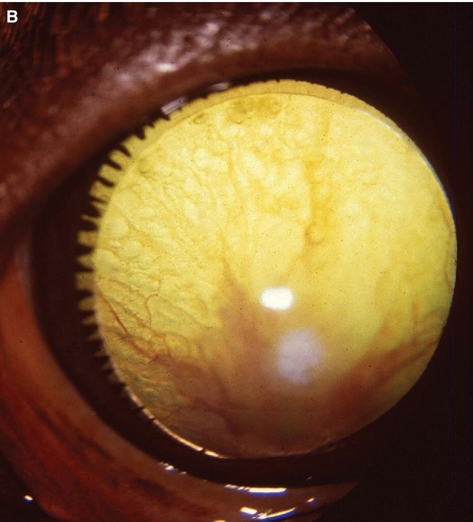 Photo displaying persistent hyperplastic tunica vasculosa lentis in a hound dog, with posterior capsular cataract and perfused surrounding mat of blood vessels.