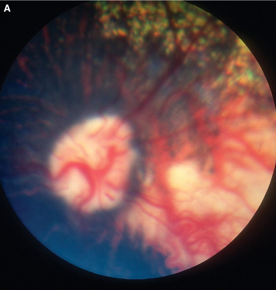 Fundus photograph displaying focal choroidal hypoplasia lateral to the optic disc in a dog with Collie eye anomaly.