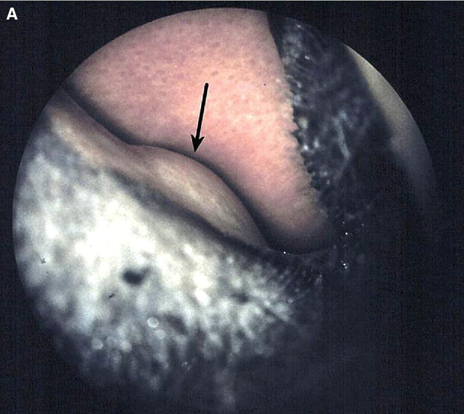 Photo displaying a foal with nasolacrimal duct atresia swelling on the floor of the nasal cavity.