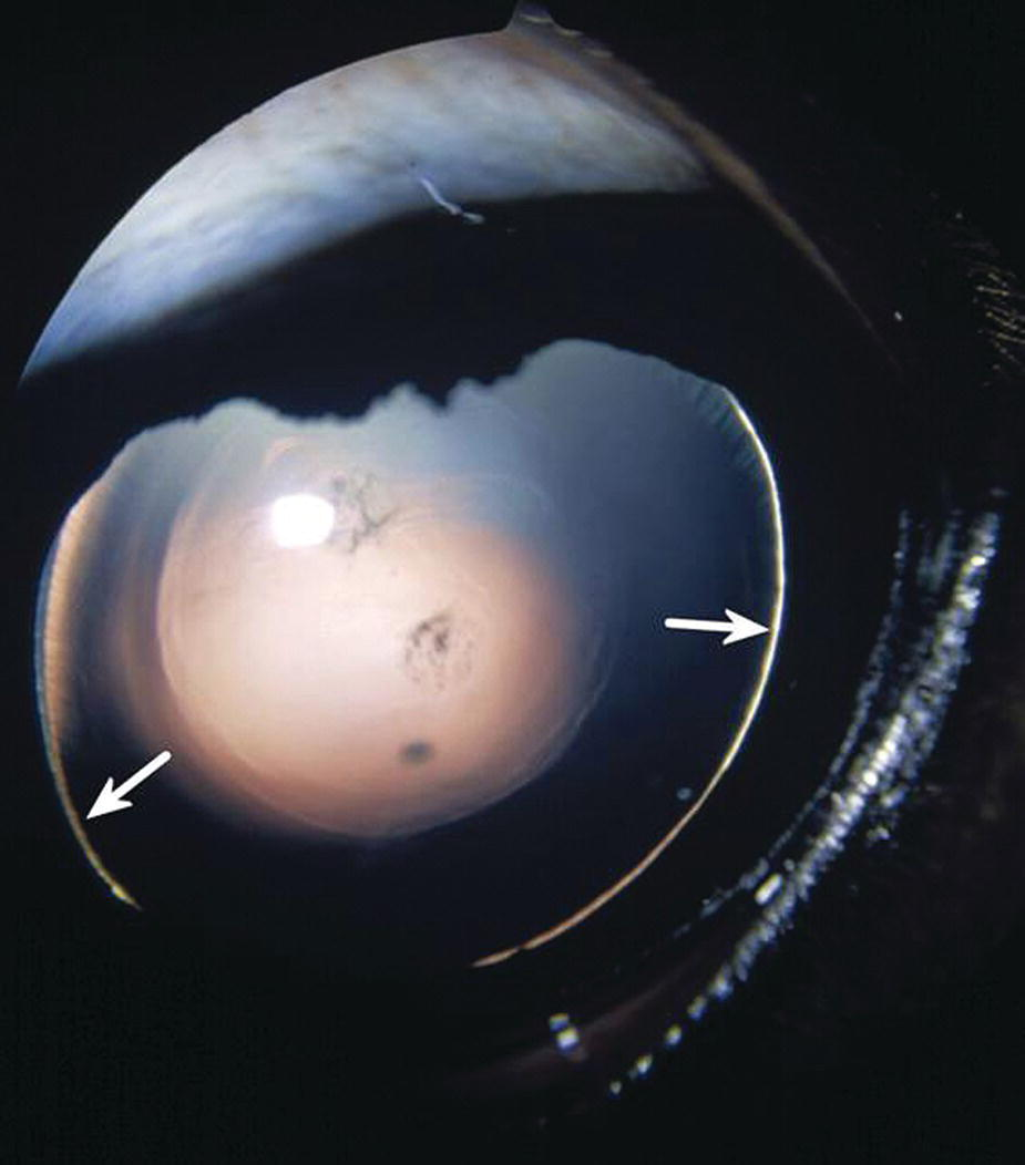 Photo displaying a foal's eye with congenital glaucoma and lens subluxation, with two arrows depicting the periphery of the lens within the pupil.