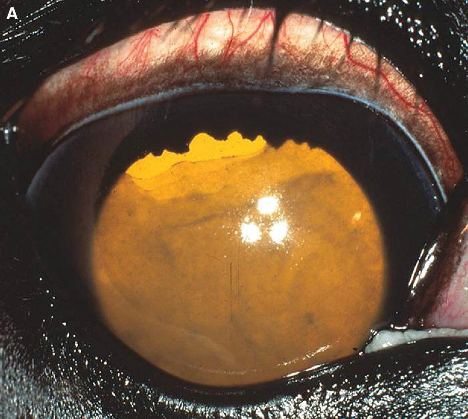 Photo displaying iridocyclitis in a foal's eye secondary to bacteremia associated with Salmonella infection, with fibrin filling the anterior chamber.