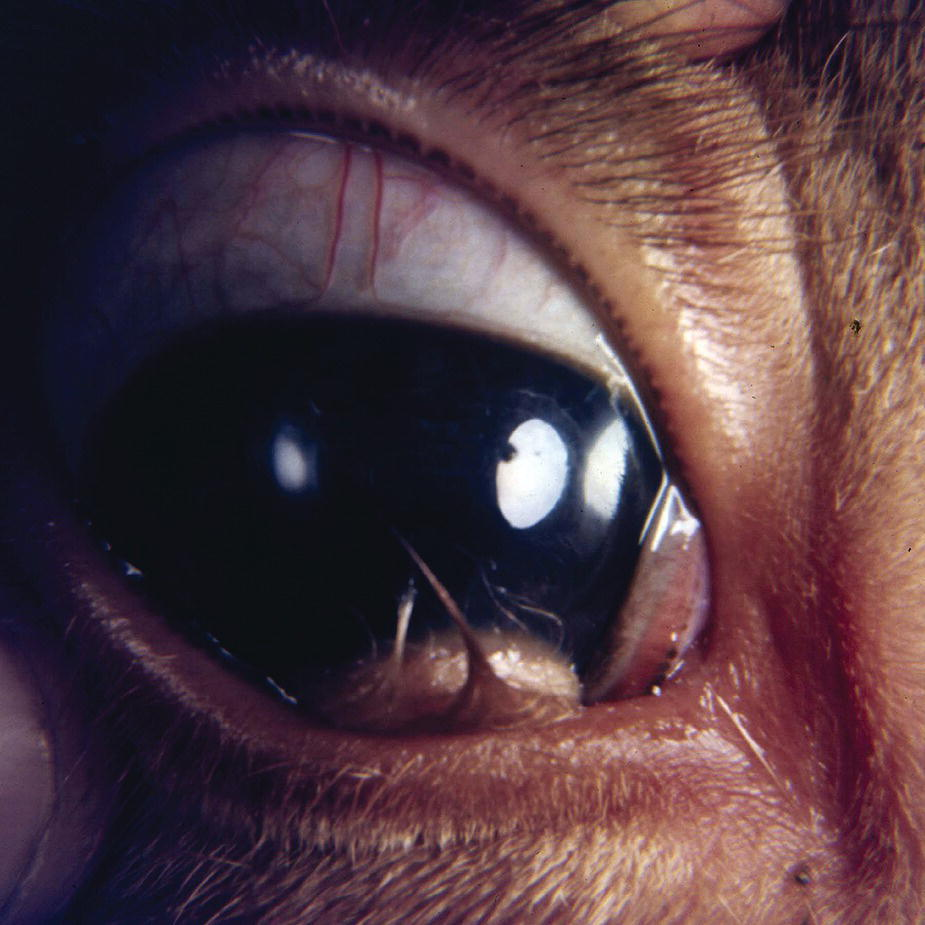 Photo displaying corneoconjunctival dermoid in a Jersey calf's eye involving the ventromedial bulbar conjunctiva and cornea, with brown mass and the long coarse hair protruding from its surface.