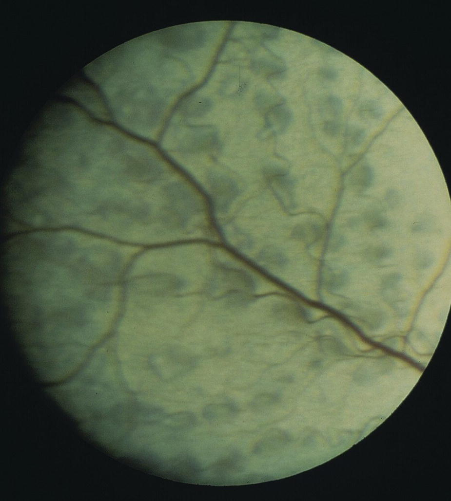 Fundus photo of the eye of a Labrador Retriever affected with oculoskeletal dysplasia.