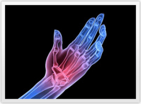 Rheumatoid Arthritis pain symptoms