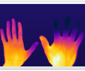 Raynaud's Phenomenon Hands