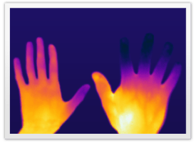 Raynaud's Phenomenon, Raynaud's Syndrome, Raynaud's Disease treatment
