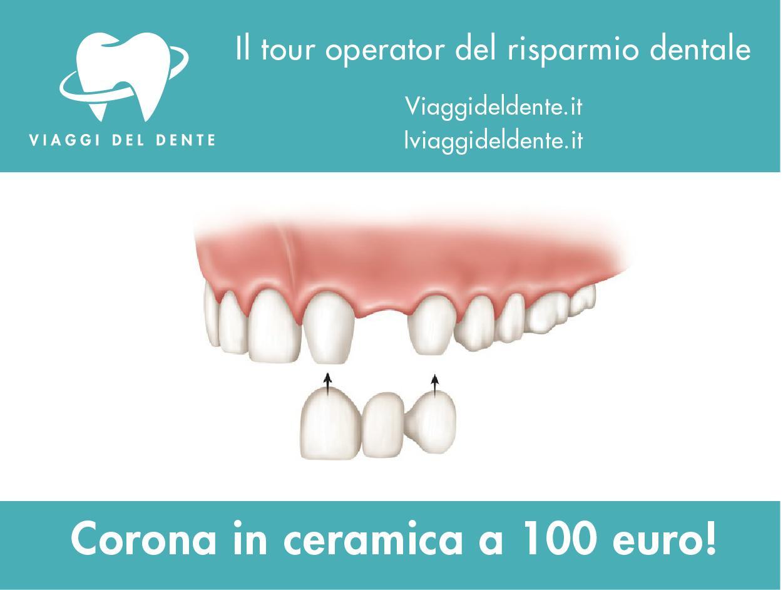 ponte denti in Croazia, corone in ceramica in Albania, prezzo dente in ceramica in Croazia, ponte circolare in Albania