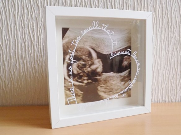 ultrassom-bebe-filho-decoracao