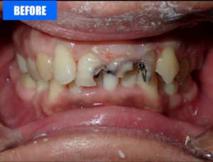 Veneers2 Before