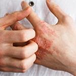 Eczema Risks