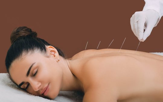 Can Acupuncture Help Me?