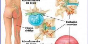 Nervo ciático inflamado - causas da dor ciática - tratamento - Vico Massagista, São José SC, Quiropraxia, Massagem Terapêutica, Massoterapia e Acupuntura. Dor no piriforme