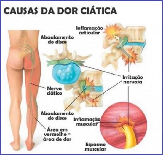 Nervo ciático inflamado - causas da dor ciática - tratamento - nervo ciático fora do lugar, mau jeito na coluna, ciatalgia, lomboaciatalgia