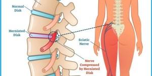 Este nervo se origina no plexo lombo sacro, ou seja, na região lombar. E é formado por diversas ramificações que se ligam às últimas vértebras e à base da coluna vertebral e atravessam o quadril, os glúteos, a coxa, o joelho e o tornozelo. Quando chega na metade do fêmur, o maior osso da coxa, o ciático se divide em fibular e tibial, que são ramificações que seguem pela perna.