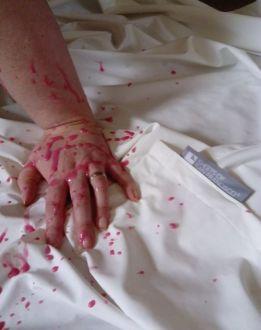 fluids hand