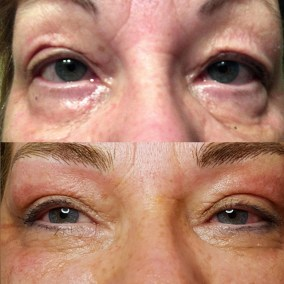 plasmage-before-after-maggie-victoria-natural-lines
