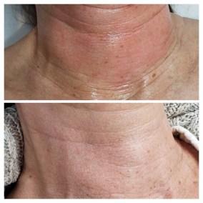 Wrinkle-Sagging-Skin-Removal-Victoria-01