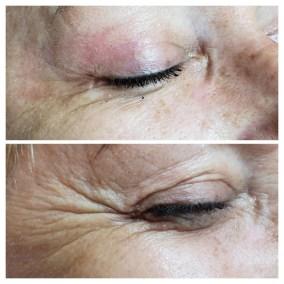 Wrinkle-Sagging-Skin-Removal-Victoria-03