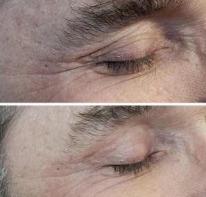 Wrinkle-Sagging-Skin-Removal-Victoria-06