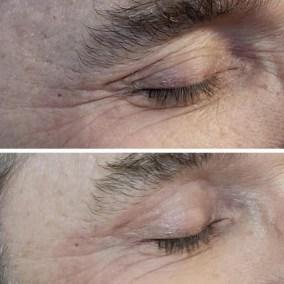 Wrinkle-Sagging-Skin-Removal-Victoria-09
