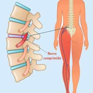 massageando o nervo ciático