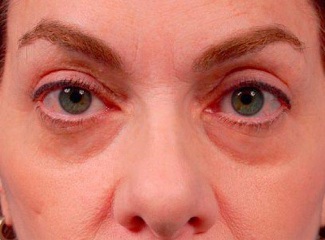 mujer después de la blefaroplastia