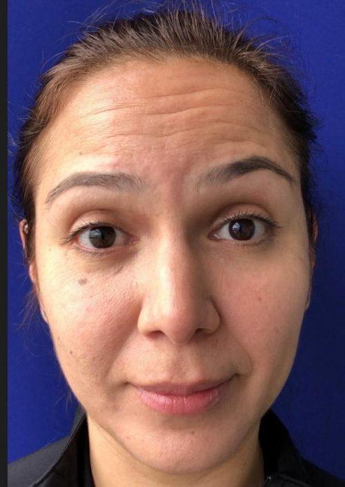 paciente con líneas de expresión en la frente