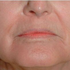 rejuvenecimiento facial de labios con láser