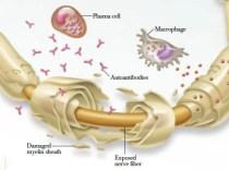 autoimmune-neuropathy