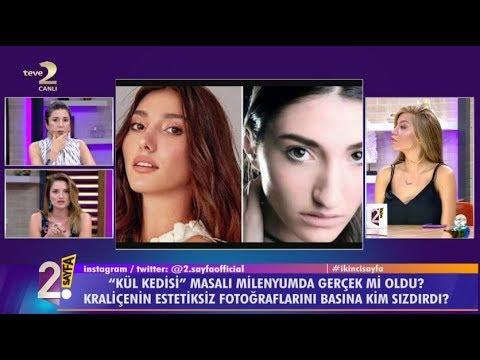 ملكة جمال تركيا في ورطة بسبب أنفها… هل ستخسر اللقب؟