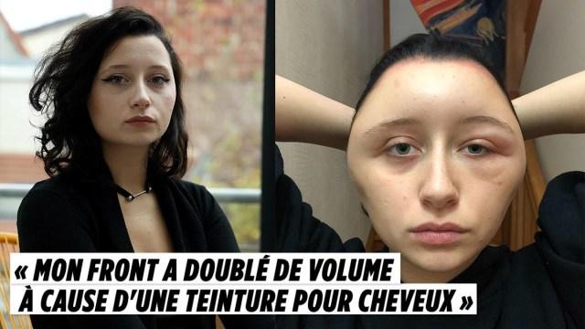 كادت تموت: صبغة شعر تحول وجه فتاة إلى كرة