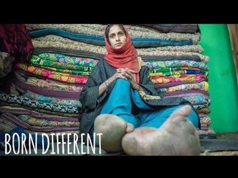 قدم امرأة هندية تتضخم لثلاثة أضعاف حجمها وهذا ما كشفته عن حالتها