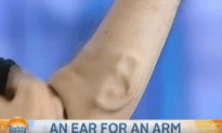 Professor Grows An Ear On His Arm