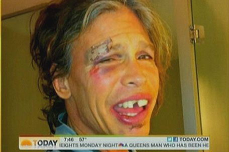 Be Careful in the Shower or You Will Wind Up Looking Like This Homeless Guy…OOPS, That is Aerosmith's / American Idol's Steven Tyler