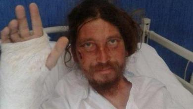 Photo of Nola – Aggressione Sasha, cinque indagati