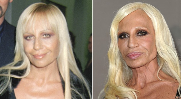 What Look Renee Graziano Surgery Did Plastic