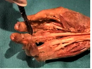 Picture from Forearm and Hand video