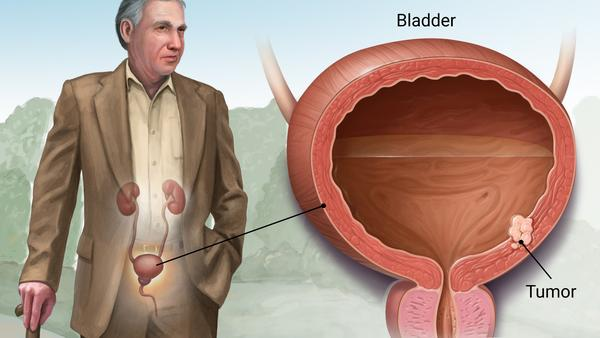 All You Need to Know About Bladder Tumors
