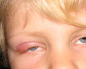 Ячмень на глазу: причины, симптомы. лечение и профилактика