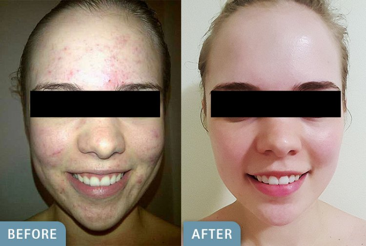 environ-before-after-1