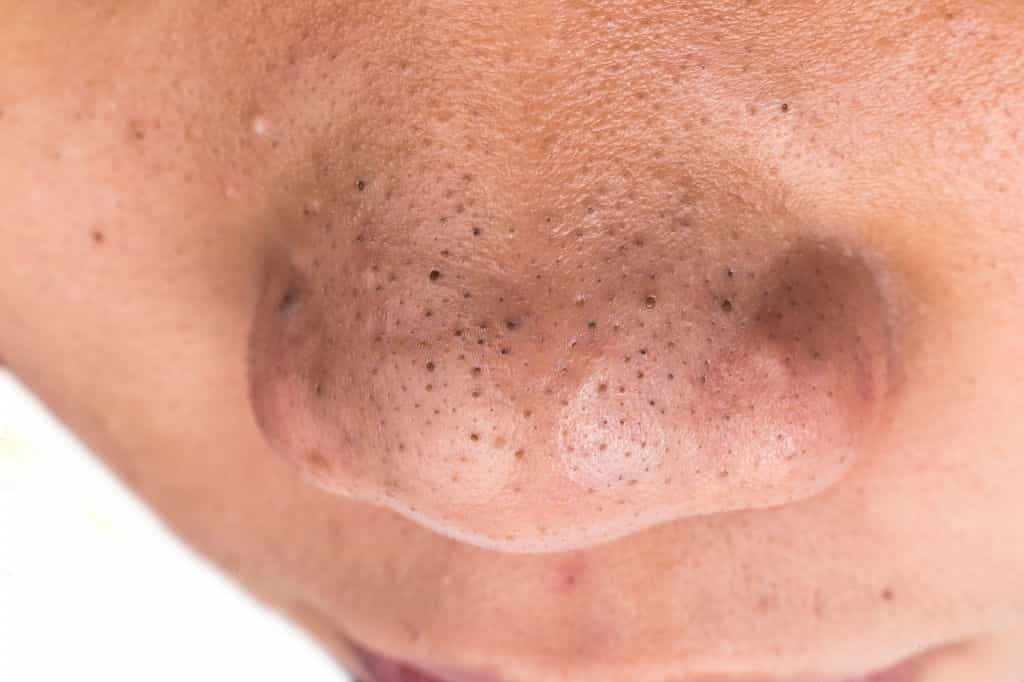 How to Get Rid of Blackheads on Nose Fast And Natural Way