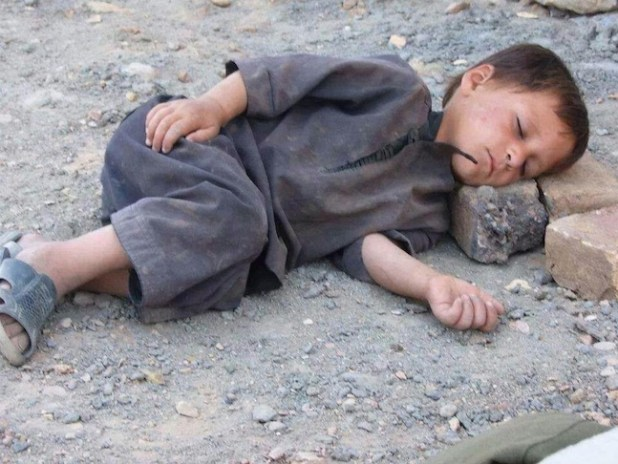 Children are the worst hit by malnutrition and poverty. (Photo via Facebook post)