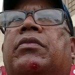 El reportero gráfico José de León herido con perdigones en la convención del PRD
