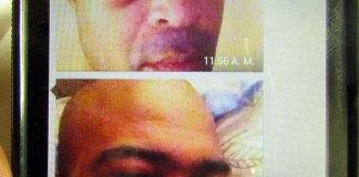 Condiciones en que quedó el rostro del Sargento mayor Carlos Feliz Mateo