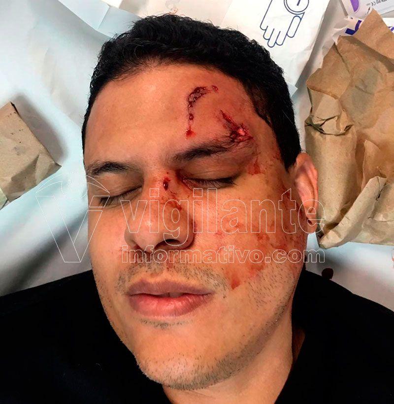 Un médico y dos seguridad heridos por paciente y familiares en el Darío Contreras