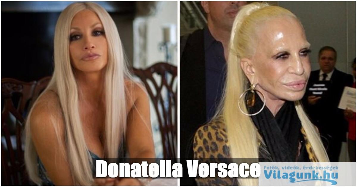 15 híresség, aki valaha szép volt, de mára teljesen tönkretette magát a plasztikai műtétekkel